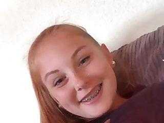 German Teen Braces Smiling